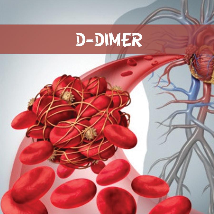 D-DIMER – một trong các xét nghiệm theo dõi điều trị bệnh nhân Covid-19