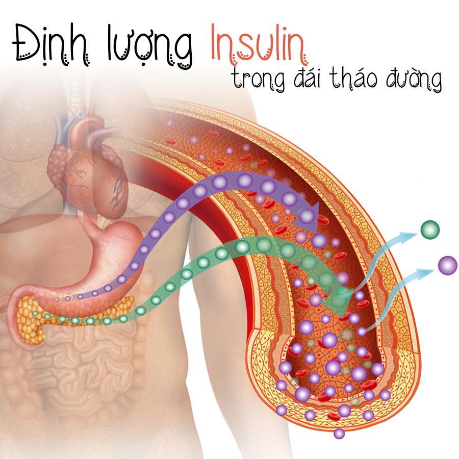 Định lượng INSULIN – Xét nghiệm chẩn đoán hạ đường huyết & kháng insulin trong đái tháo đường
