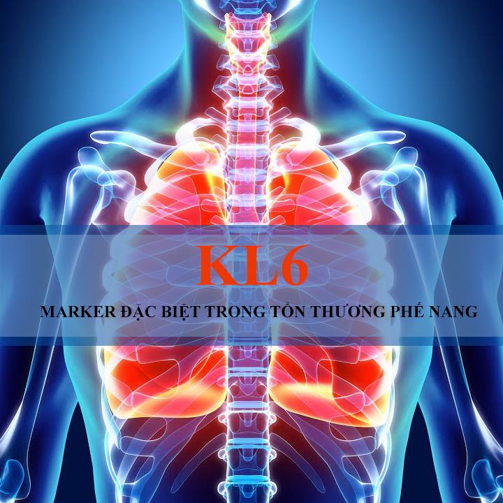 KL6 – MARKER đặc biệt trong tổn thương phế nang