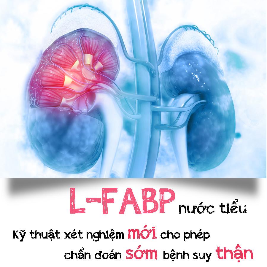 L-FABP nước tiểu – một dấu ấn sinh học mới của tổn thương ống lượn gần